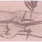 bloedtransfusie aplastische anemie