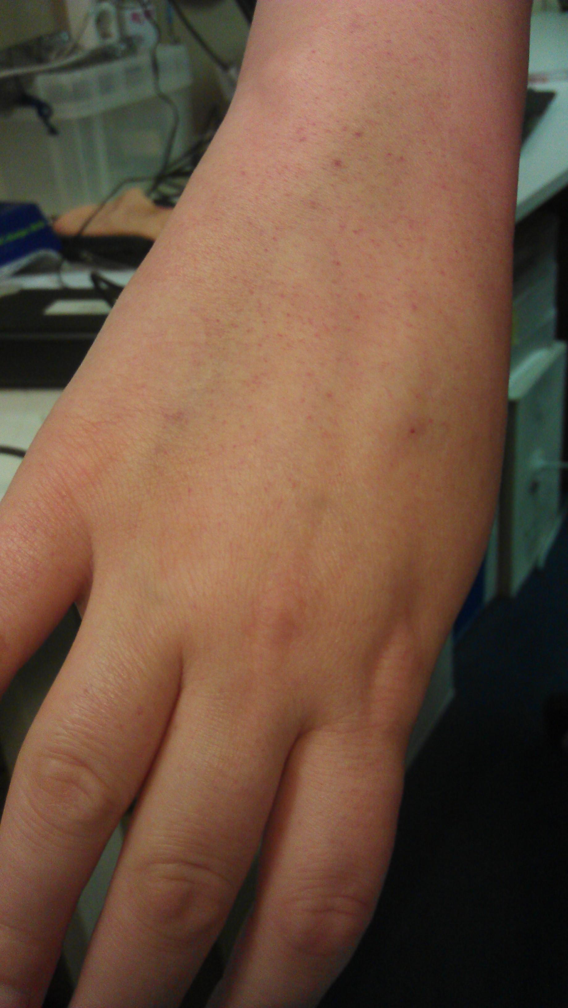 Petechiën-hand-aplastische-anemie