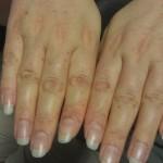 Aplastische Anemie petechiën handen